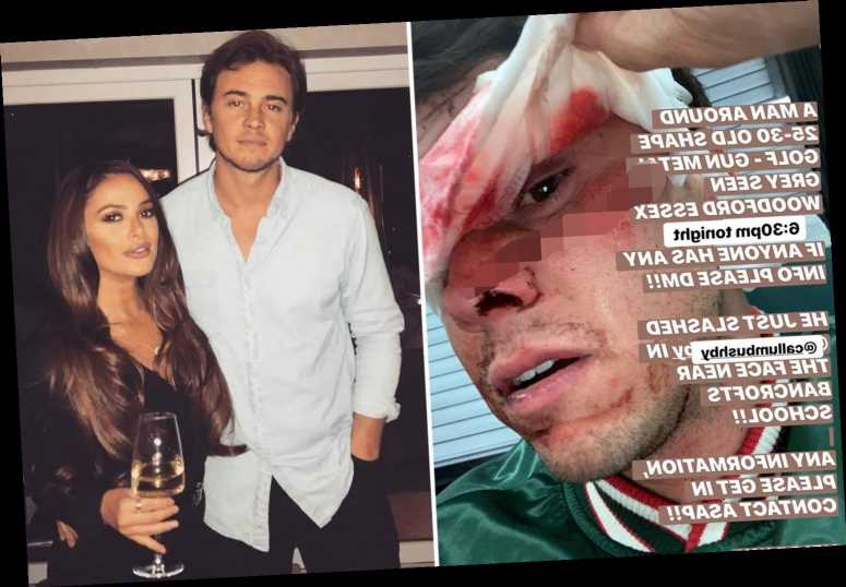 TOWIE's Courtney Green's ex reveals horrific injuries after being slashed in the face with scissors during attack