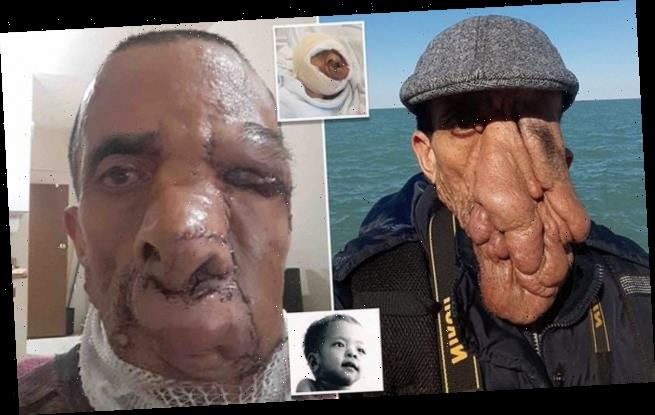 Nepalese man finally has huge tumour covering his face removed