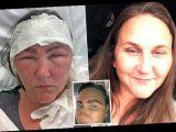 Woman looked like 'Space Raider alien' after salon dye BURNED eyebrows