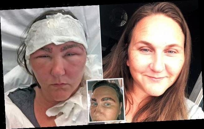 Woman looked like 'Space Raider alien' after salon dye BURNED eyebrows