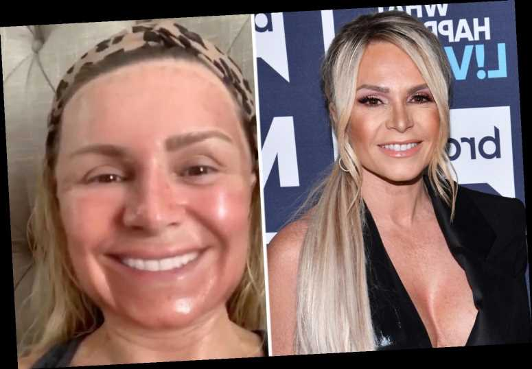 RHOC's Tamra Judge shows off scary red, swollen face after laser peel at plastic surgeon's office