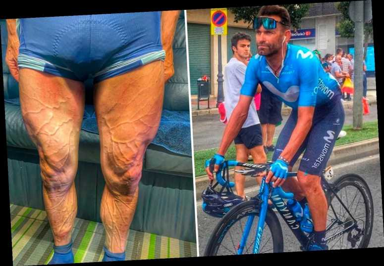 Cycling star Jose Joaquin Rojas shows off his 'Incredible Hulk' legs with huge veiny calves after Tour of Spain