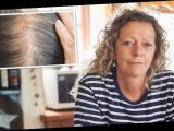 Hair loss treatment: Hormone scalp drops can improve hair density in menopausal women