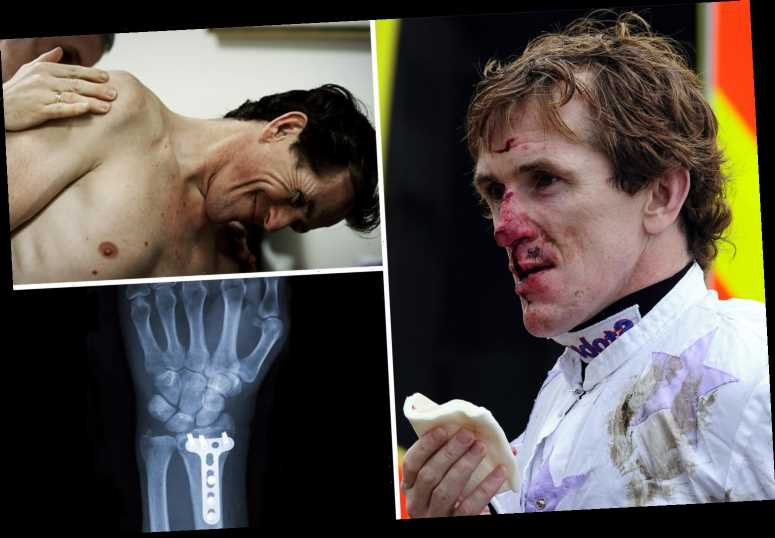 AP McCoy's unbelievable list of injuries that 'f***ed' his body includes punctured lung and breaking ALL his teeth