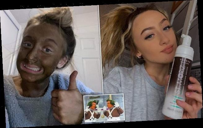 "Teen is left looking ""like an Oompa Loompa"" after a dark fake tan"