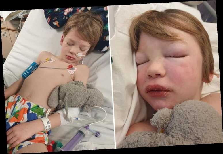 Mum's horror as son, 7, covered in blisters and in intensive care with deadly illness linked to Covid