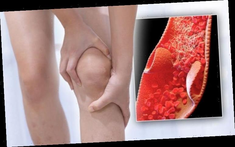 Blood clot symptoms: Four signs of a blood clot that 'may feel similar to a pulled muscle'