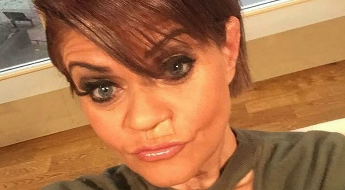 Danniella Westbrook has first surgery to repair 'decaying' face after drug abuse