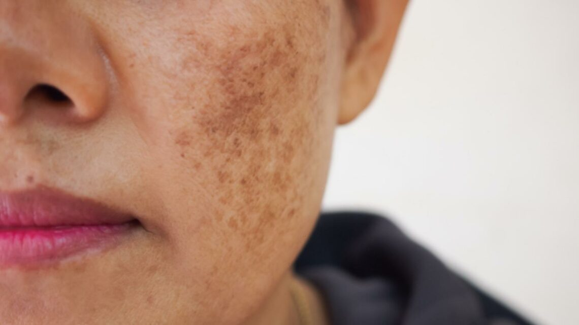 Dermatologist Reveals 3 Products She Swears By For Dark Spots