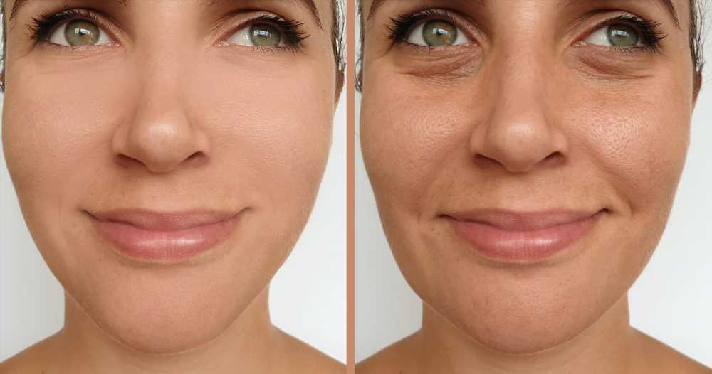 This Dual Anti-Aging Skincare Primer Feels Like an 'Instant Facelift'