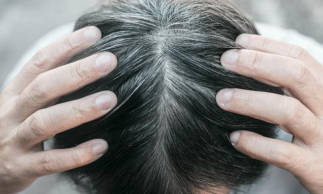 Stress does turn hair gray but it might be reversible, scientists say