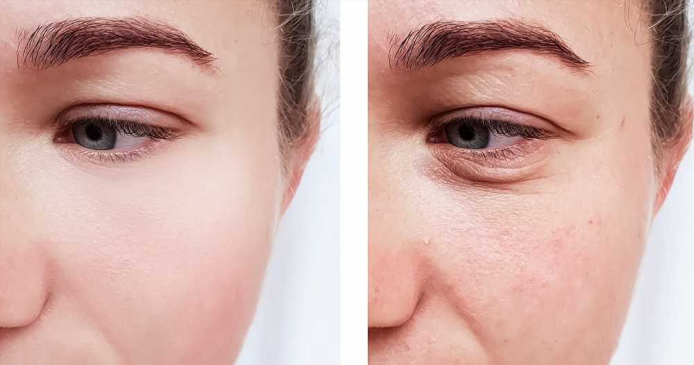 This Hyaluronic Acid Serum Is Leading to Amazing Before and After Photos