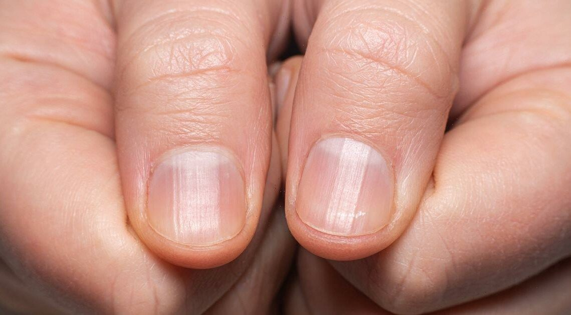 What ridges in your nails mean – from kidney disease to mineral deficiency