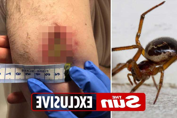 Beware false widows as heatwave drives spiders into homes and victims left with rotting wounds and pus-filled blisters