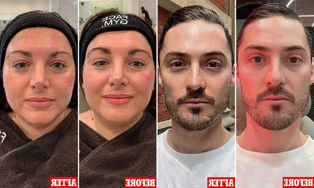 How beauty fans de-puffed their faces in 35 minutes with massage