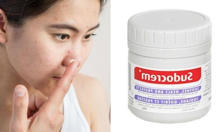 Is Sudocrem good for acne? The best way to get rid of spots