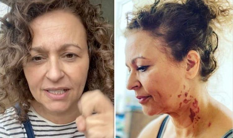 Nadia Sawalha asks fans for urgent help as cooking accident leaves her with horror burns