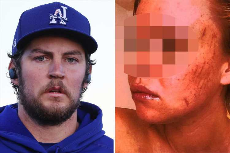 Trevor Bauer texted 'sex assault' victim 'I never want to see you hurt' after Dodgers star 'choked her unconscious'