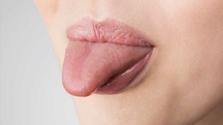 From infections to gut troubles, what your TONGUE is telling you about your health