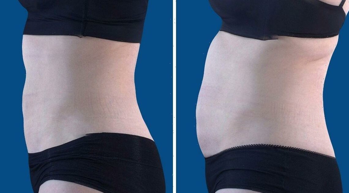 Astonishing new tummy blitz melts fat and tones abs without gym or diet