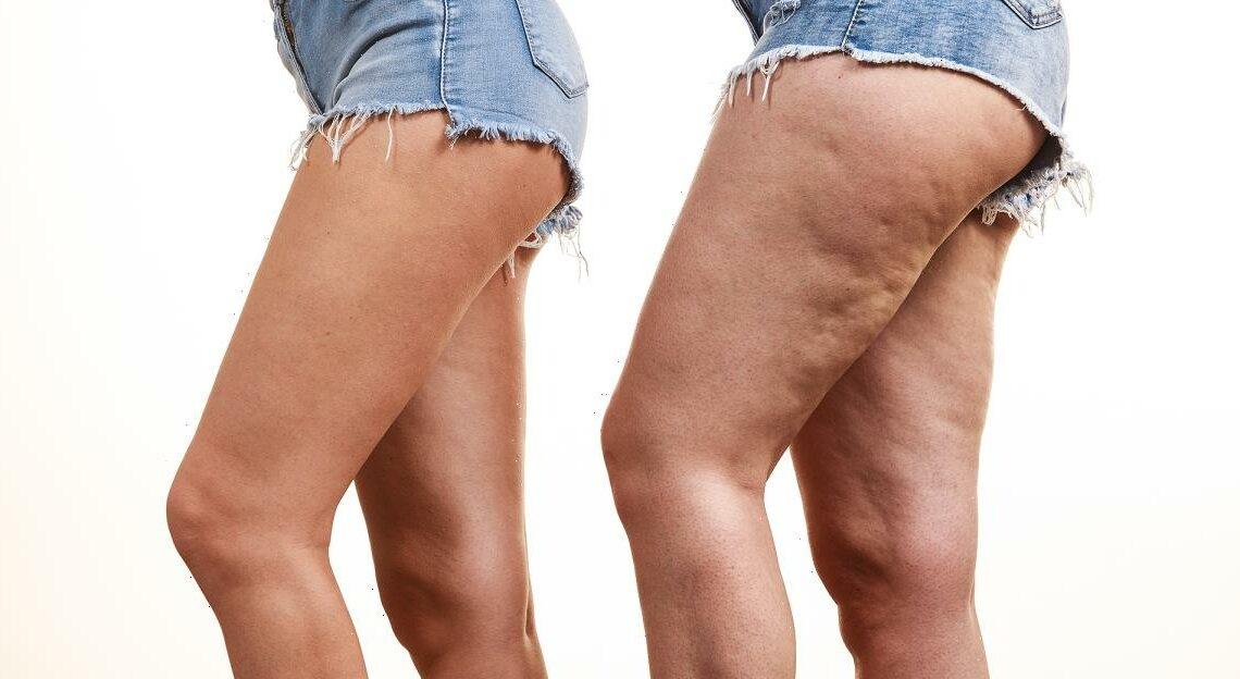 This $11 Anti-Cellulite Cream Is a Secret Hit on Amazon